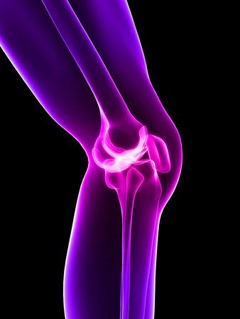 de rodillas: rodilla inflamada