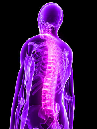 inflamed: inflamed spine Stock Photo