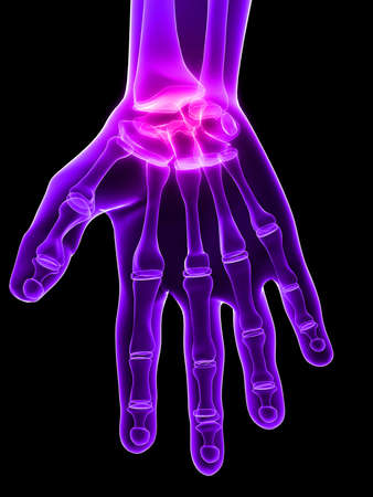 phalanx: inflammed hand joint