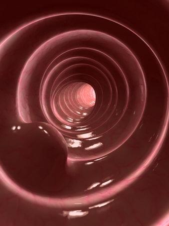 colon: colon polyps Stock Photo
