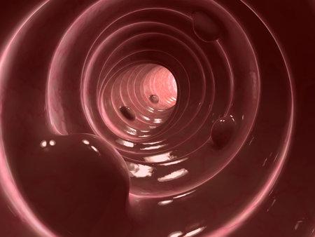 gut: colon polyps Stock Photo
