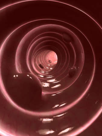 carcinoma: colon polyps Stock Photo