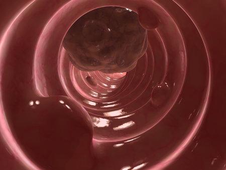 bowel surgery: colon tumor