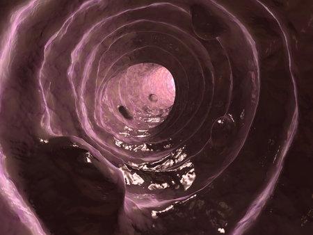 intestin: mauvais colon