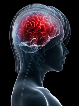 nerveux: femme � la t�te forme avec des maux de t�te  migraine