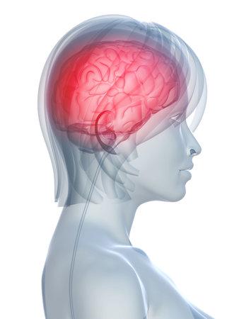 female head shape with headachemigraine photo