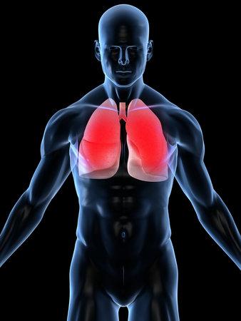 polmone: infezione polmonare Archivio Fotografico