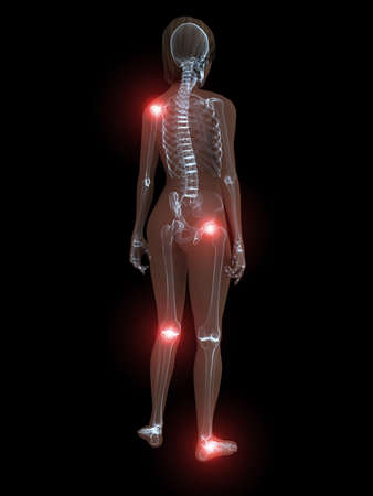 inflammated: transparent female body with highlighted joints