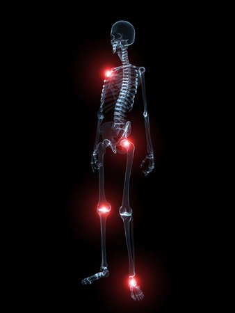 inflammated: human skeleton with highlighted joints