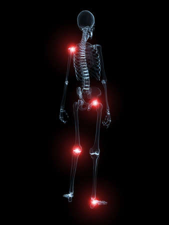inflammation: human skeleton with highlighted joints