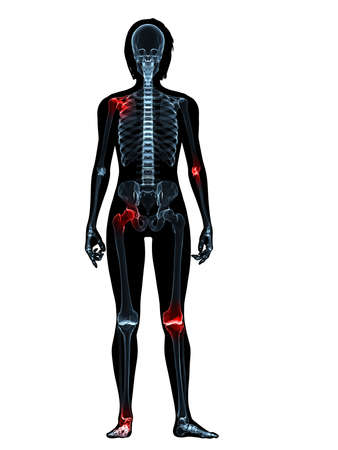 transparent female body with highlighted joints Stock Photo - 4844263