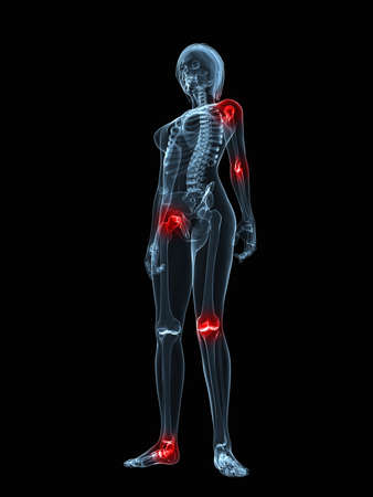 inflammation: transparent female body with highlighted joints