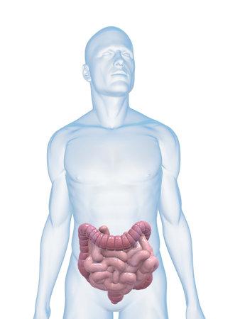 intestines: cuerpo de hombre con c�ncer de colon y los peque�os intestinos Foto de archivo