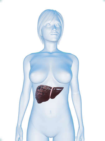 female body with liver cancer photo