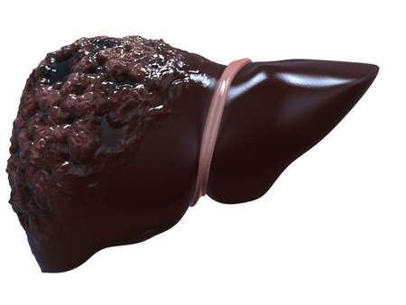 foie humain: cancer du foie Banque d'images