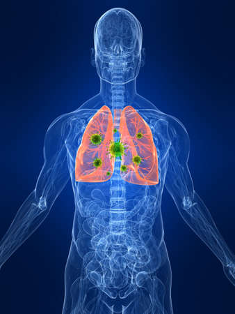 flue: transparent body with lung infection