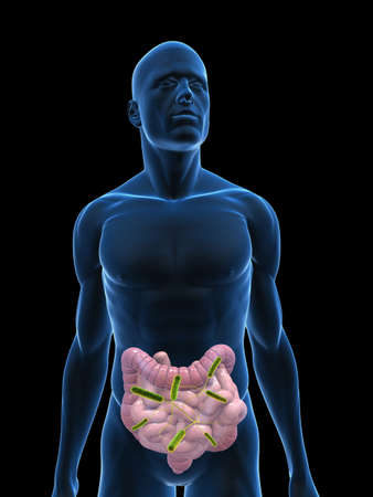 achy: transparent body with colon infection