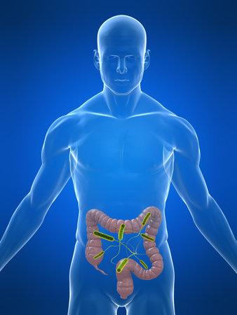 intestino: cuerpo transparente con dos puntos de infecci�n