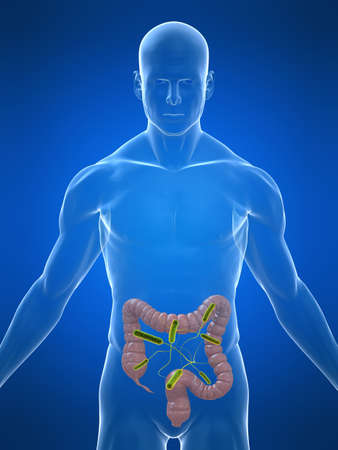 colon cancer: transparent body with colon infection
