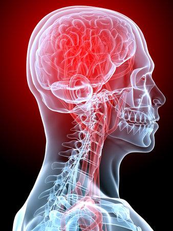 skeletal system: headachemigraine