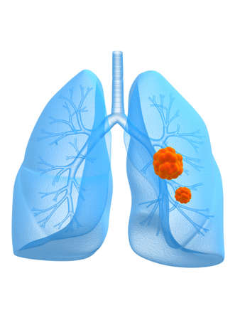 lung cancer photo