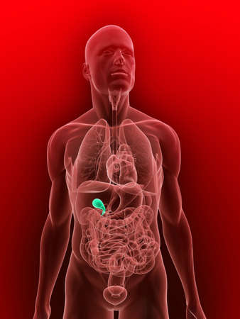 inflammated: transparent body with highlighted gallbladder Stock Photo