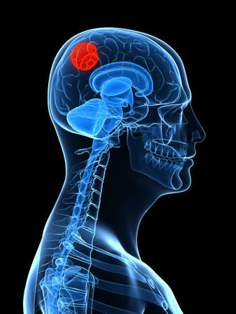 commissure: x-ray human head with cerebral tumor Stock Photo