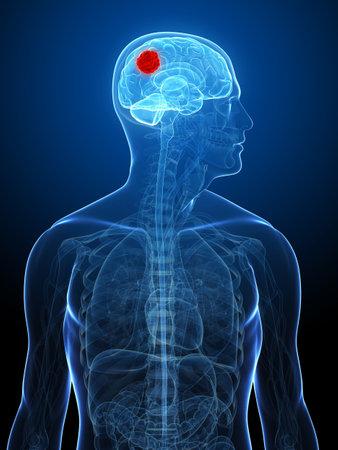 x-ray human head with cerebral tumor Stock Photo - 5960387