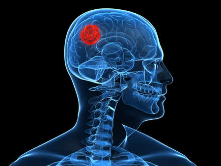 x-ray human head with cerebral tumor Stock Photo - 5960423