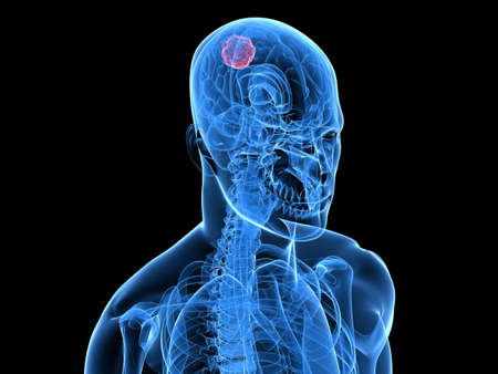 cingulate: x-ray human head with cerebral tumor Stock Photo
