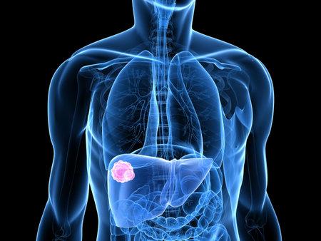 foie humain: carzinoma dans le foie humain
