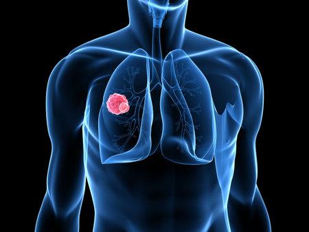 pulmon sano: carzinoma en el pulm�n humano  Foto de archivo