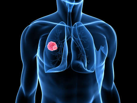 lungenkrebs: Carzinoma in menschlichen Lunge