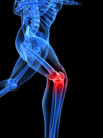knee joint: running skeleton with painful knee joint