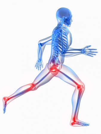 radiation therapy: running skeleton with painful knee and hip joint Stock Photo