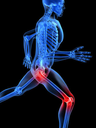 knee joint: running skeleton with painful knee and hip joint Stock Photo