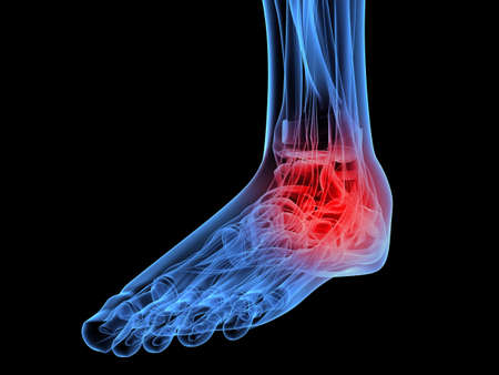 inflamed: human x-ray foot - highlighted ankle Stock Photo