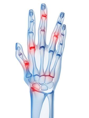 artrite: mano umana a raggi x con artrite nelle articolazioni delle dita  Archivio Fotografico