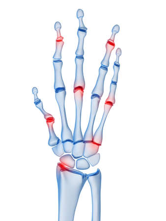 inflamed: human x-ray hand with arthritis in finger joints Stock Photo