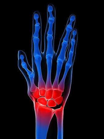 phalanx: human x-ray hand - arthritis Stock Photo