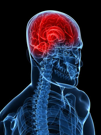 medulla: highlighted brain - headachemigraine Stock Photo