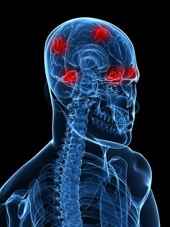 highlighted brain - headache/migraine Stock Photo - 6003195
