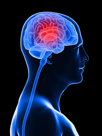 midbrain: highlighted brain - headachemigraine Stock Photo