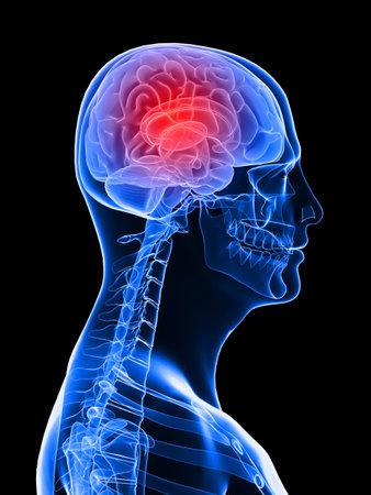 sulcus: highlighted brain - headachemigraine Stock Photo
