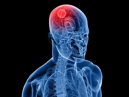 cerebral: x-ray human head with cerebral tumor in brain Stock Photo