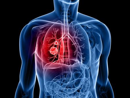 body shape: forma del corpo umano con il cancro del polmone