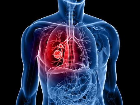 canc�rologie: forme du corps humain avec le cancer du poumon