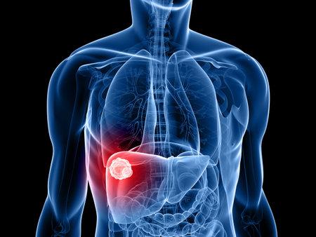 foie humain: forme du corps humain avec un cancer du foie  Banque d'images