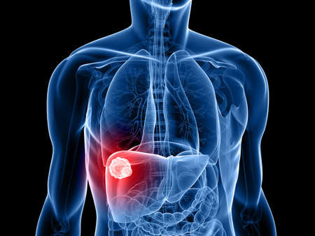 human liver: human body shape with liver cancer