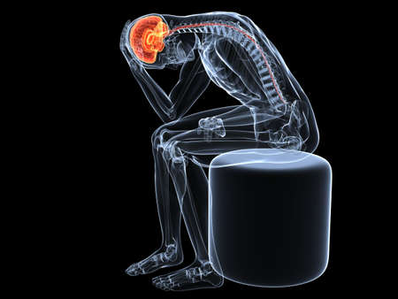 inflamed: sitting skeleton with headachemigraine